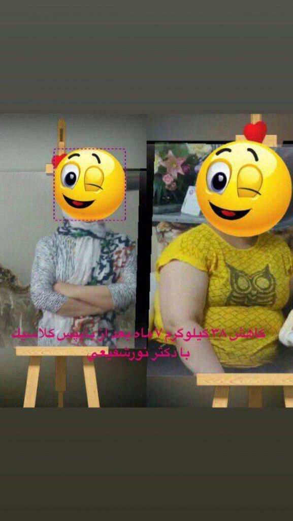 قص المعدة في ايران | الدکتور نور شفیعی | جراحة تكميم المعدة | قص المعدة في مشهد